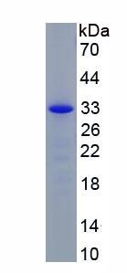 Recombinant Serum Amyloid A (SAA)
