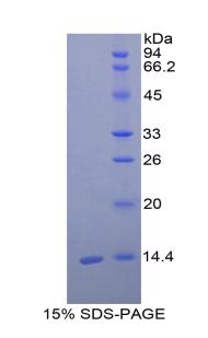 Recombinant Cystatin C (Cys-C)
