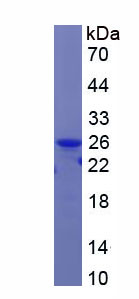Recombinant Retinol Binding Protein 4 (RBP4)