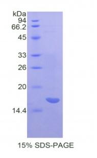 Recombinant Alpha-2-Macroglobulin (a2M)