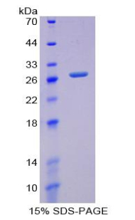 Recombinant Glutamate Cysteine Ligase, Modifier Subunit (GCLM)