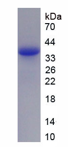 Recombinant Cytochrome P450 7A1 (CYP7A1)