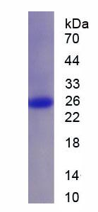 Recombinant Glutathione S Transferase Pi (GSTp)