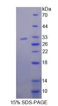Recombinant Nucleoporin 85 (NUP85)