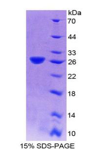 Recombinant Dynamin 2 (DNM2)