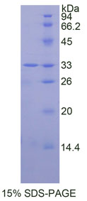 Recombinant Mitogen Activated Protein Kinase 14 (MAPK14)
