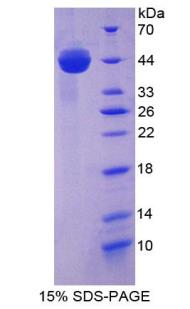 Recombinant Aspartate Aminotransferase (AST)