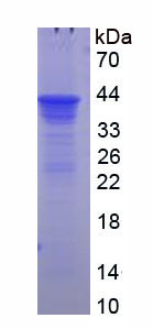 Recombinant Corticosteroid Binding Globulin (CBG)