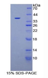 Recombinant Plasminogen (Plg)