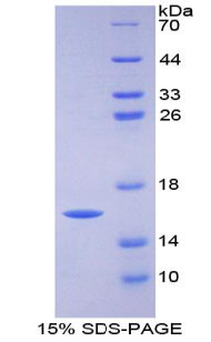 Recombinant Fatty Acid Binding Protein 3, Muscle And Heart (FABP3)