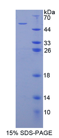 Recombinant Programmed Cell Death Protein 6 Interacting Protein (PDCD6IP)