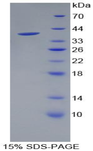 Recombinant Pancreatic Polypeptide (PP)