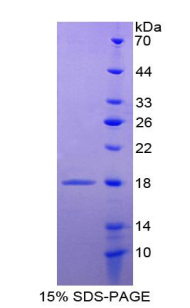 Recombinant Agouti Related Protein (AGRP)