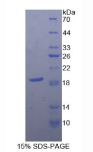 Recombinant Cluster of Differentiation 59 (CD59)