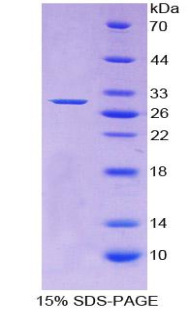 Recombinant Adenylate Cyclase 1, Brain (ADCY1)