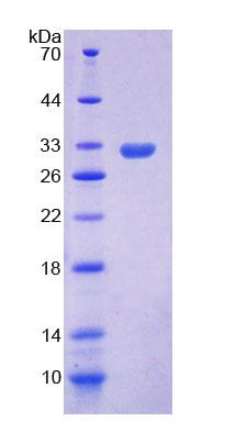 Recombinant Apoptosis Signal Regulating Kinase 1 (ASK1)