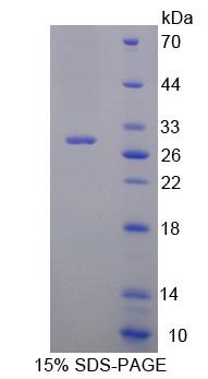 Recombinant Acid Sphingomyelinase (ASM)