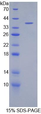 Recombinant Defensin Beta 1 (DEFb1)