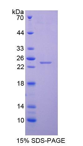 Recombinant Neutrophil Gelatinase Associated Lipocalin (NGAL)