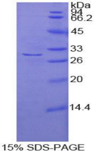 Recombinant Adenylate Cyclase 2, Brain (ADCY2)