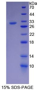 Recombinant Lipopolysaccharide Binding Protein (LBP)