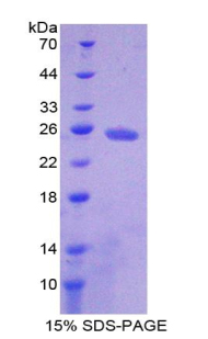 Recombinant Adenylate Cyclase 4 (ADCY4)