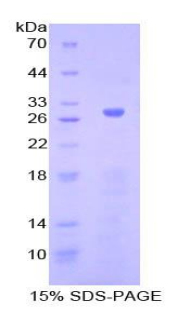 Recombinant Adenylate Cyclase 5 (ADCY5)