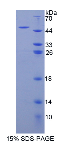 Recombinant Adenylate Cyclase 8, Brain (ADCY8)