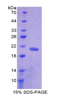 Recombinant Nuclear Pore Glycoprotein 210 (gp210)