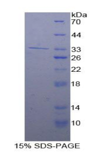 Recombinant Adenylate Cyclase 9 (ADCY9)
