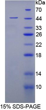 Recombinant Enolase 3 (ENO3)