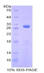 Recombinant Ribonuclease Inhibitor (RI)