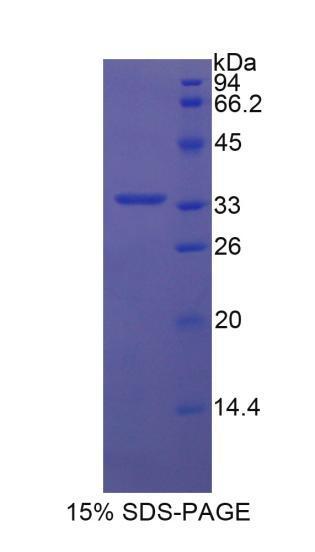 Recombinant Semaphorin 7A (SEMA7A)