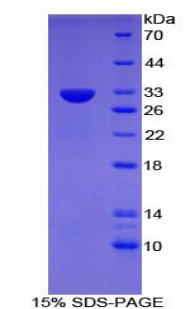 Recombinant Cluster Of Differentiation 109 (CD109)