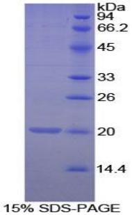 Recombinant Matrix Gla Protein (MGP)
