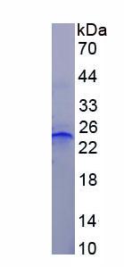 Recombinant Tumor Necrosis Factor Receptor 1 (TNFR1)