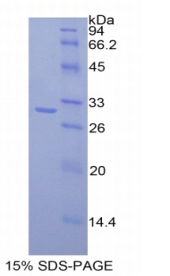 Recombinant Mucosal Addressin Cell Adhesion Molecule 1 (MAdCAM1)