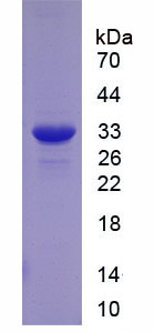 Recombinant Cluster Of Differentiation 36 (CD36)