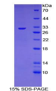 Recombinant Cytochrome P450 Family 21 Subfamily A Member 2 (CYP21A2)