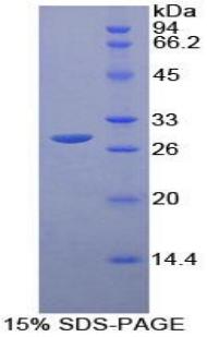Recombinant Receptor I For The Fc Region Of Immunoglobulin G (FcgRI)