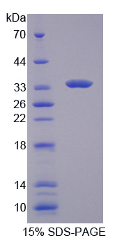 Recombinant Tyrosine Kinase 2 (Tyk2)