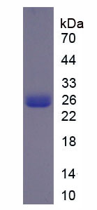 Recombinant Phospholipase A2, Cytosolic (cPLA2)