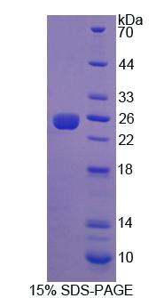 Recombinant Insulin Like Growth Factor 1 Receptor (IGF1R)
