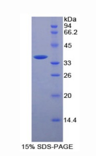 Recombinant Cluster Of Differentiation 146 (CD146)