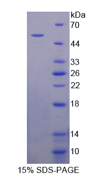 Recombinant Protein Kinase, AMP Activated Beta 1 (PRKAb1)