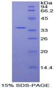 Recombinant Protein Kinase B Beta (PKBb)