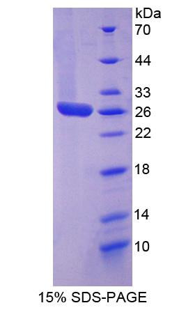 Recombinant Signal Transducer And Activator Of Transcription 3 (STAT3)