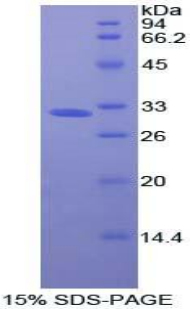 Recombinant Oncostatin M Receptor (OSMR)