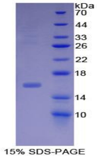 Recombinant Inhibin Beta B (INHbB)