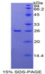 Recombinant Orosomucoid 2 (ORM2)